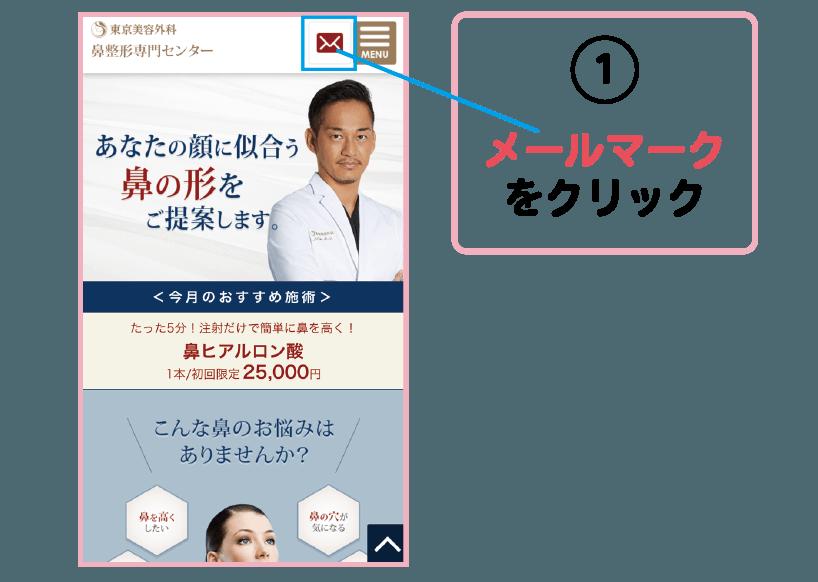 鼻整形メディアチェルノーズ 東京美容外科